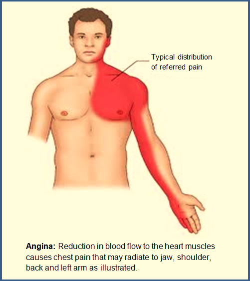 ACS-Patient-Angina-Referred Pain-Symptoms