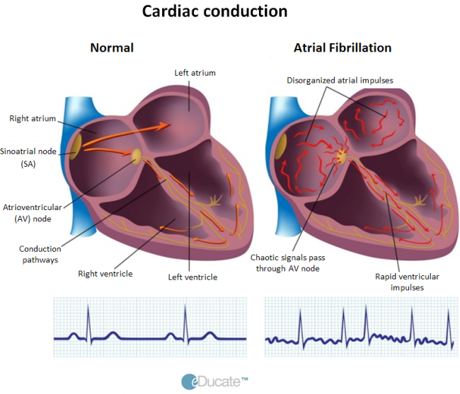 Patient-AF-Definition-Conduction