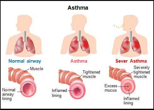 Asthma airways