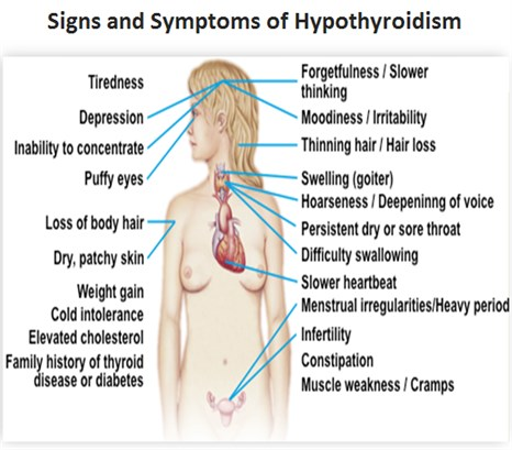 1-Image-Symptoms-Clinical features-Hypothyroid