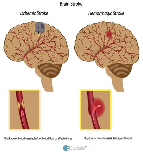 Comparison of ischemic and hemorrhagic stroke-Definition